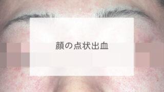 顔の点状出血